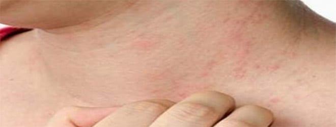 alergias primavera reacción piel