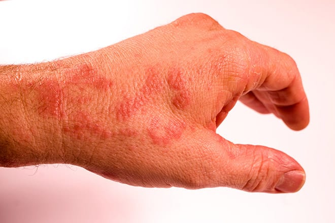 Alergias cutáneas