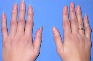 Artritis psoriasica. Dedos