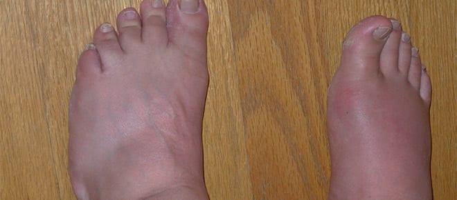 artritis tipos, gota