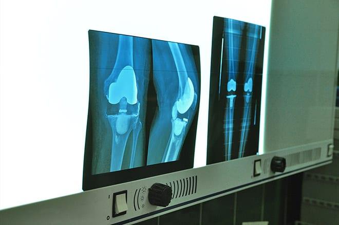 artrosis. Diagnóstico