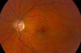 Behcet Enfermedad. Lesiones oculares