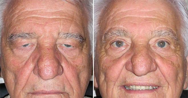 Blefaroplastia superior, antes y después