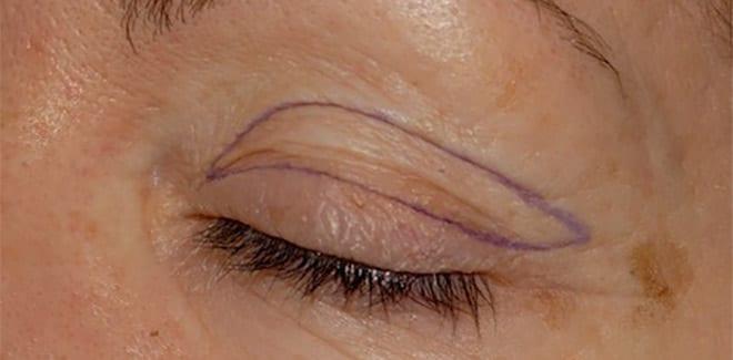 Blefaroplastia superior detalle ojo