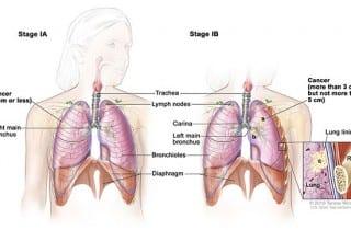 cáncer de pulmón - pronóstico en 3 marcadores