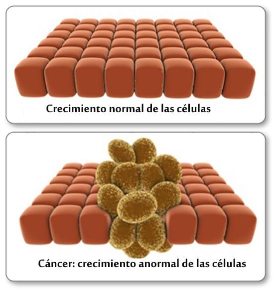 Cancer, las células del cáncer