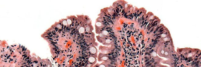 candidiasis intestinal crecimiento bacterias