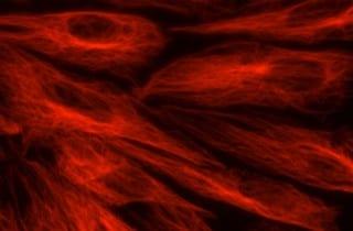 celulas del corazon a partir de celulas madre