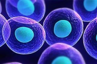 Células madre para artritis reumatoide