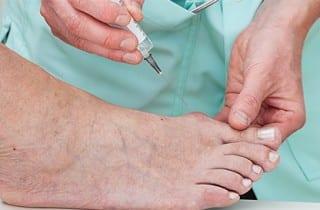 celulas madre en ortopedia aplicación