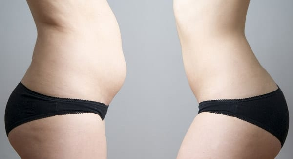 celulitis resultados liposuccion