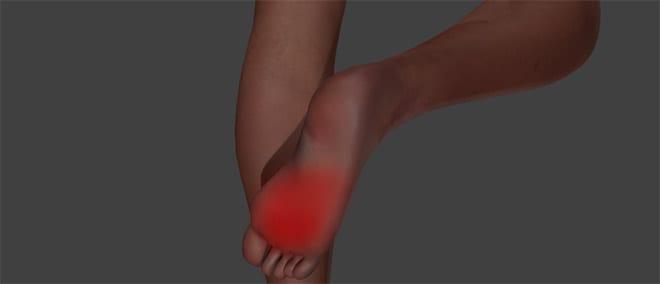 diabetes de los pies nerviosos
