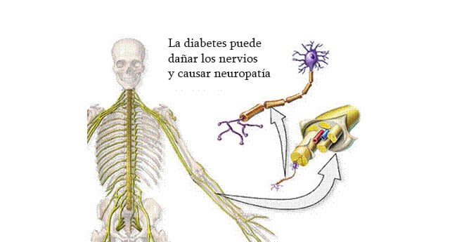 Dolor neuropático diabetes