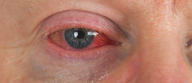 Enfermedades autoinmunes. Psoriasis