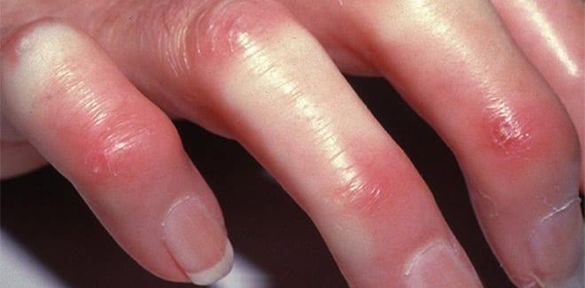 Esclerodermia tipos