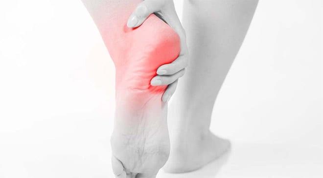 fascitis plantar fuerte dolor pie