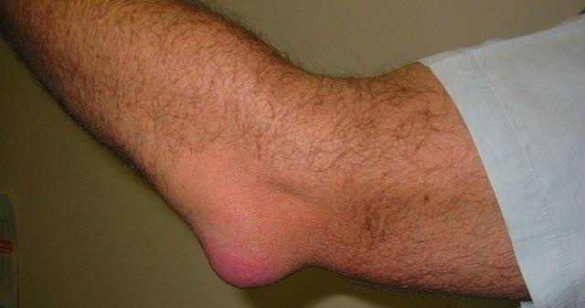 fisioterapia deportiva bursitis codo