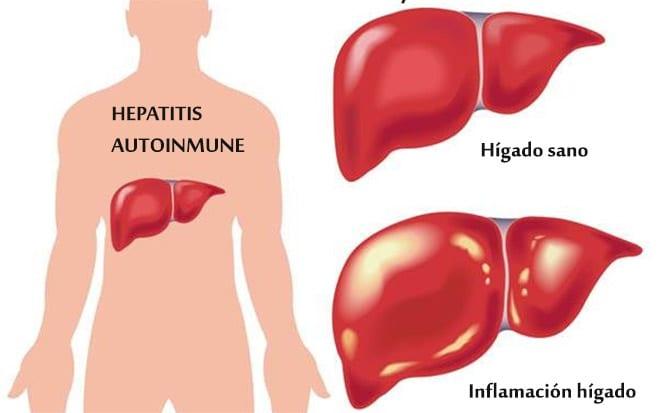 Hepatitis autoinme. Inflamación hígado