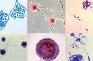 hongos. micobioma