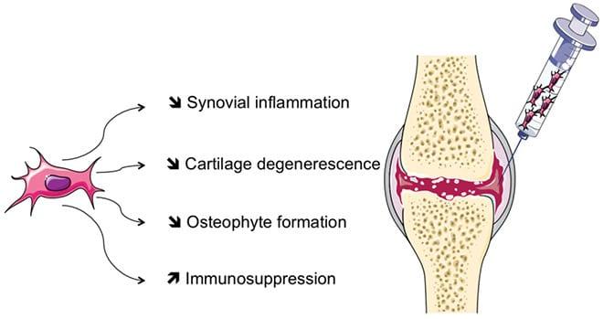 Inyección directa células madre