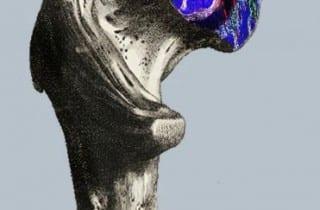 Medicina regenerativa problemas oseos. Femur con celulas madre OCR