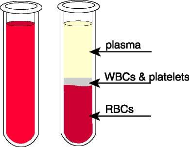 Medicina regenerativa sangre prp