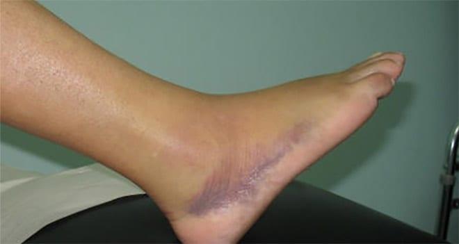Medicina regenerativa tras lesiones deportivas. Esguince