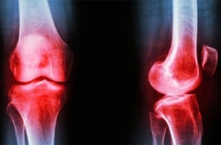Osteoartritis movimiento