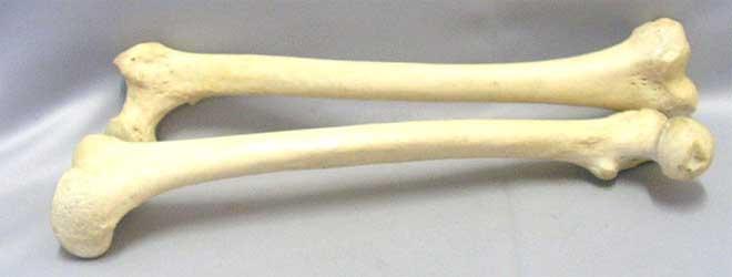 Osteoporosis: qué es