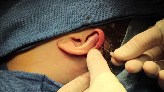 otoplastia, operacion orejas