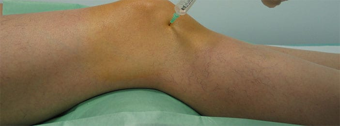 para que sirve la ozonoterapia en rodilla