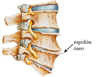 Radiculopatía cervical espolón óseo