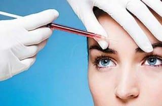 Regeneración facial con PRP