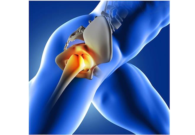 regeneracion cartilago con andamiajes