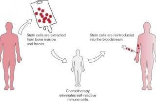 Terapia con celulas madre para esclerosis multiple