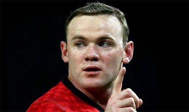 trasplante de pelo- Rooney