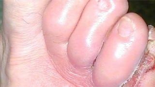 Ulceras isquémicas. Pie con úlceras